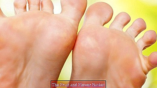Get rid of warts with urine